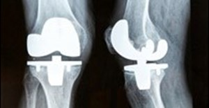 One size does not fit all for knee replacements and other medical devices