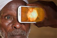 Transforming a smartphone into an eye test kit