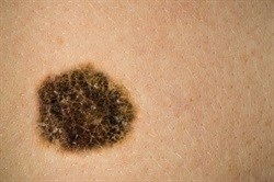 Managing melanoma, early detection could save your life