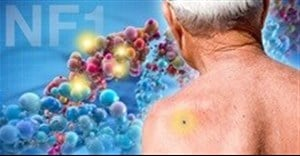 Yale study identifies 'major player' in skin cancer genes