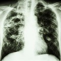 Better reporting may lead to advances in managing TB in children