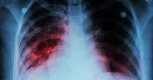 Blocking TB vitamin production may be key to treatment