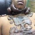 Keloid surgery gives a man his life back