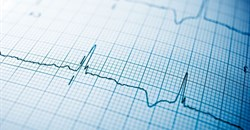 UCT research focus on combating poverty-related heart disease in Africa