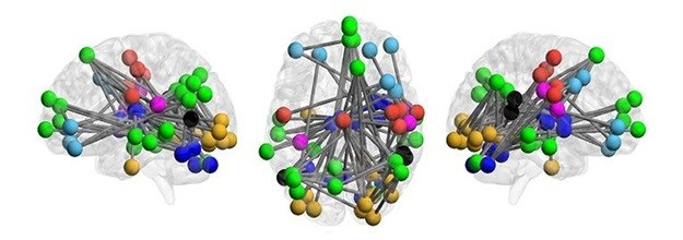 Brains of people at risk of psychosis exhibit a pattern that can help predict whether they will go on to develop full-fledged schizophrenia, a new Yale-led study shows.