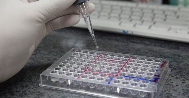 The WHO recommends HIV viral load testing to monitor people on ARVs. Shutterstock