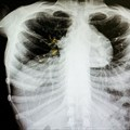 Around 18% of previously treated TB cases are drug resistant. Shutterstock