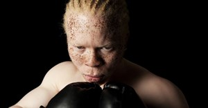 UN expert to assess SA's rights of people with albinism