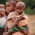 Children who experience multiple forms of malnutrition are at the greatest risk of early death. JLwarehouse/Shutterstock