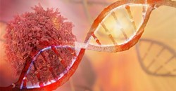Cancer cases are on the rise in many parts of the continent. CI concept/Shutterstock