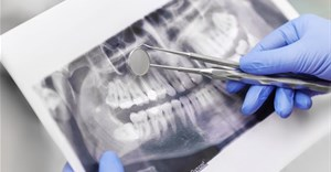 Many genetic abnormalities involve the oral and dental region of the face. Shutterstock