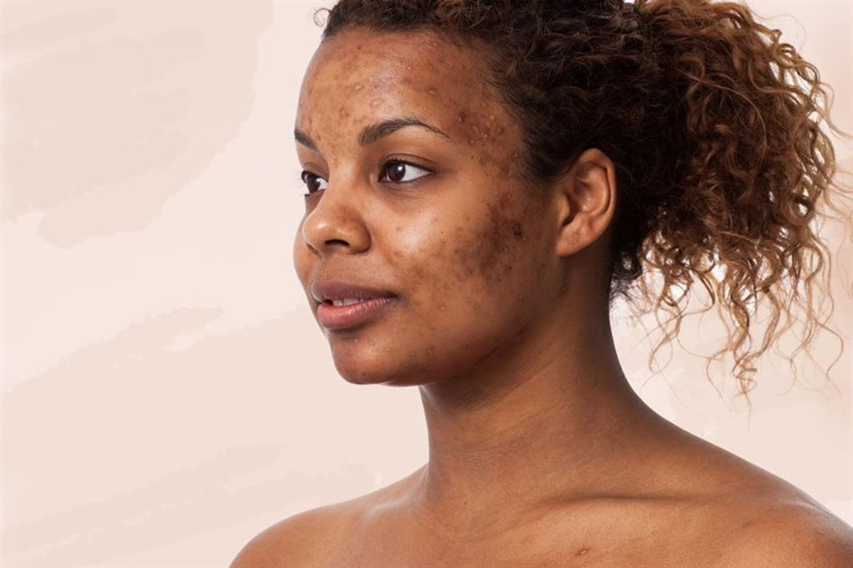 Different types of pigmentation and how to treat it