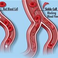 Normal blood cells (left) and the blood cells in sickle cell disease, which do not flow through the circulatory system smoothly. Credit: Darryl Leja, NHGRI (CC BY 2.0)