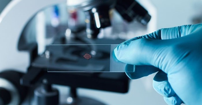 UKZN and UniZulu researchers discover proteins to fight parasitic disease