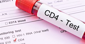 #WorldAidsDay: Covid-19 not the only health crisis we have on our hands