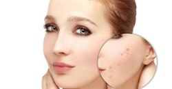 How Skin Renewal is clearing adult acne holistically