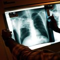 The WHO recommends that TB prevalence surveys be done in high burden countries. Spencer Platt/Getty Images